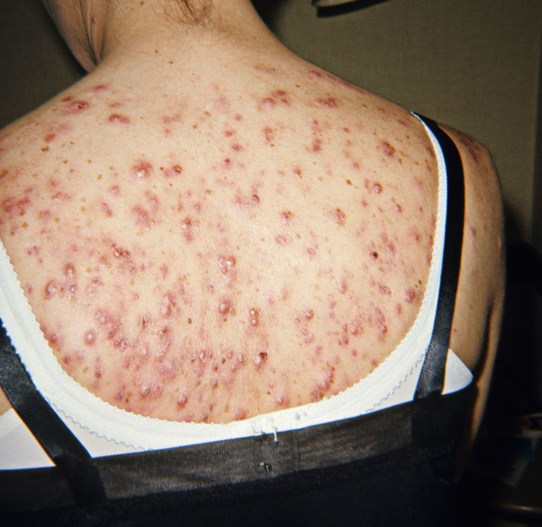 Cystic Acne on the Back