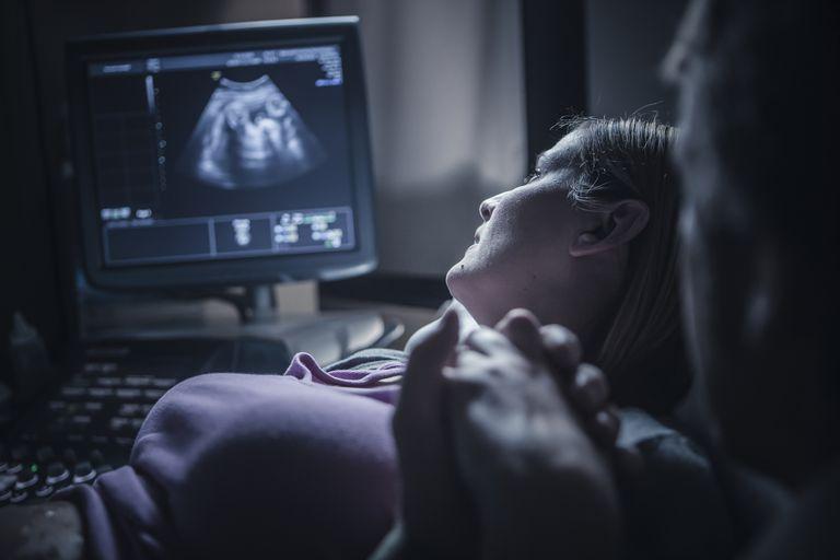 Pregnant couple having sonogram