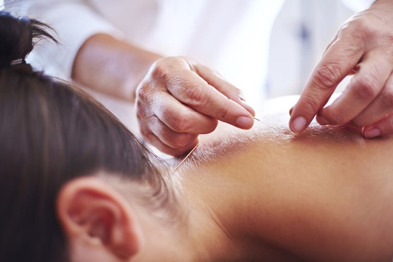 Close up acupuncturist applying acupuncture needles to womans neck
