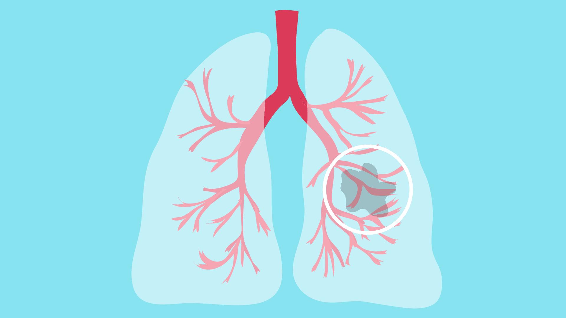 Ketogenic Diet For Lung Cancer | KetogenicDietPDF.Com