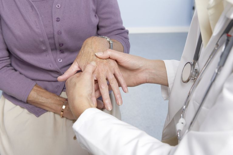 Rheumatoid arthritis, general practitioner examining patient and hand for signs of rheumatoid arthri