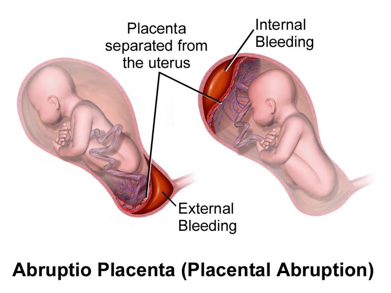 desprendimiento prematuro de la placenta
