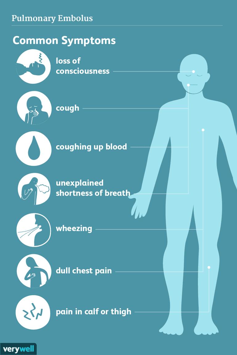 pulmonary embolus symptoms