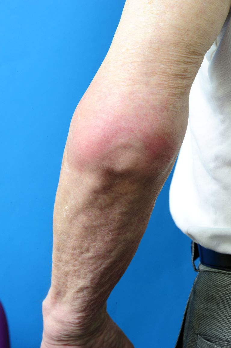 Elbow joint with gout