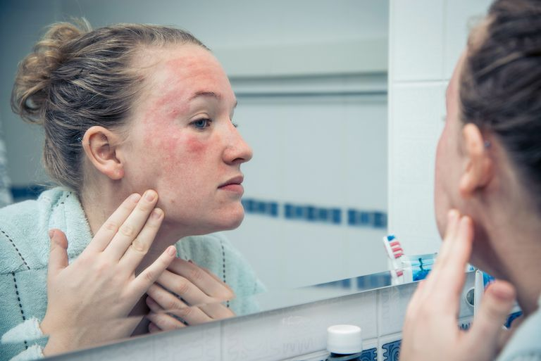 Benzoyl peroxide allergy