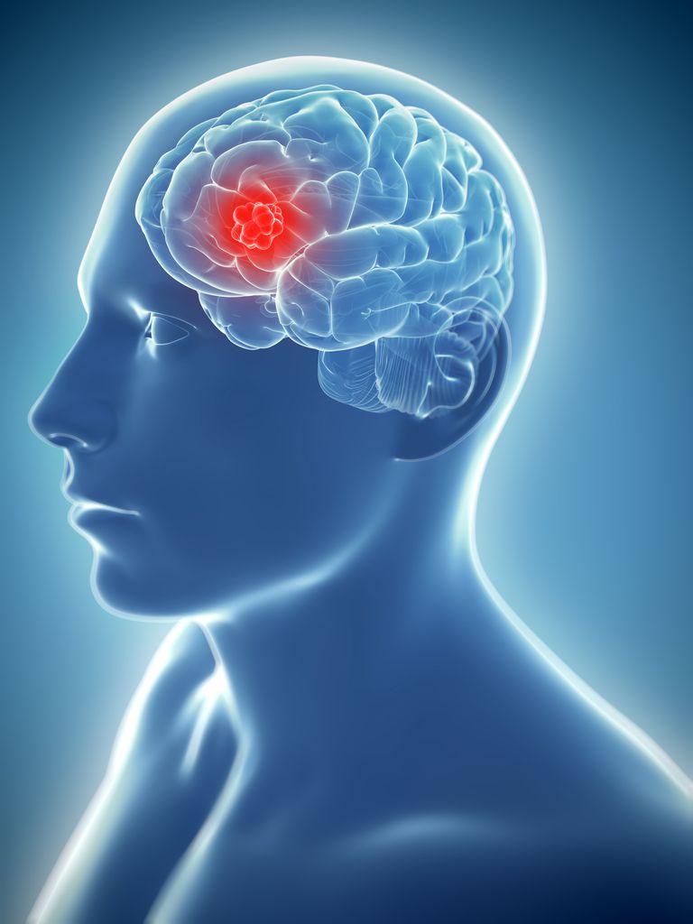 brain_tumor.jpg