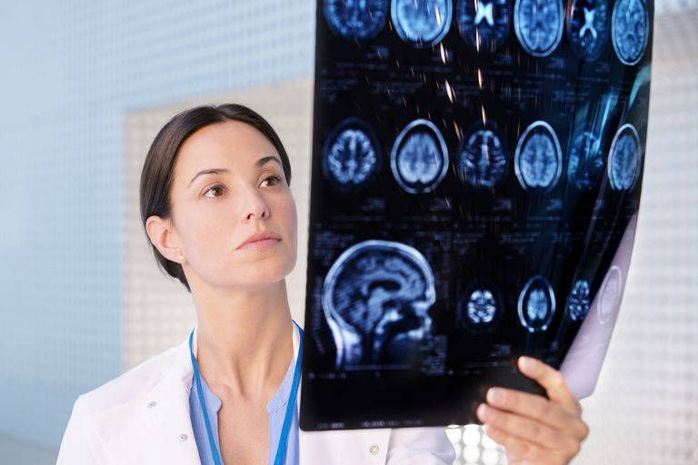 A neurologist examines a brain scan.