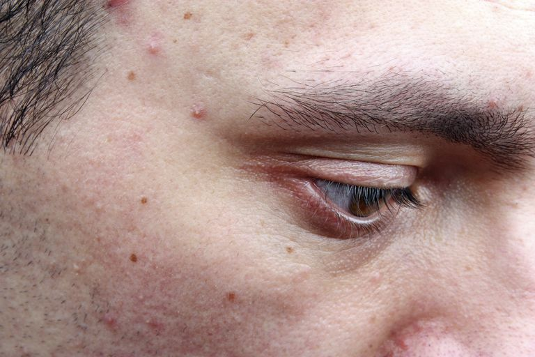 man with acne like Tarceva rash