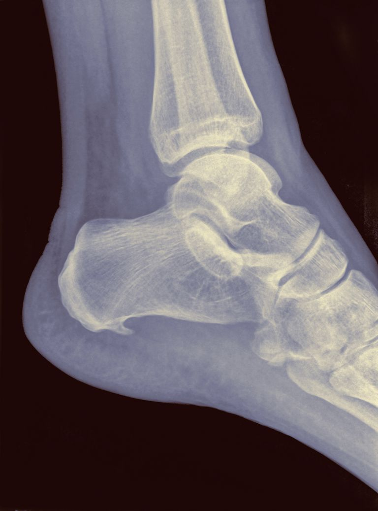 X-ray of heel with Plantar Fasciitis or Jogger's heel, 48 year old male