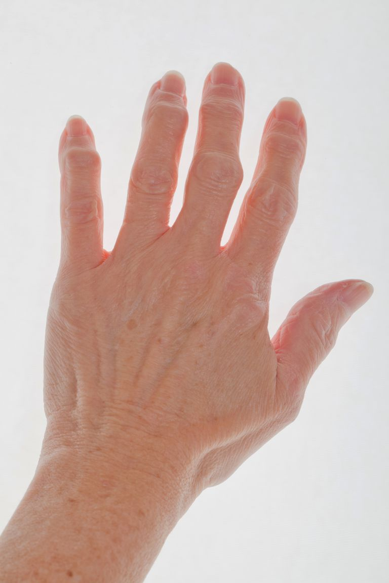 Finger Arthritis Signs Symptoms And Treatment