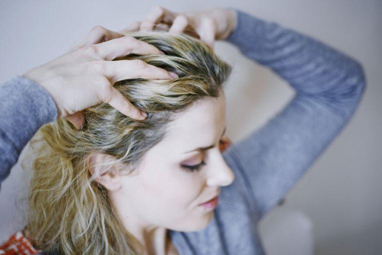 A flaky, itchy scalp is a symptom of seborrhea.