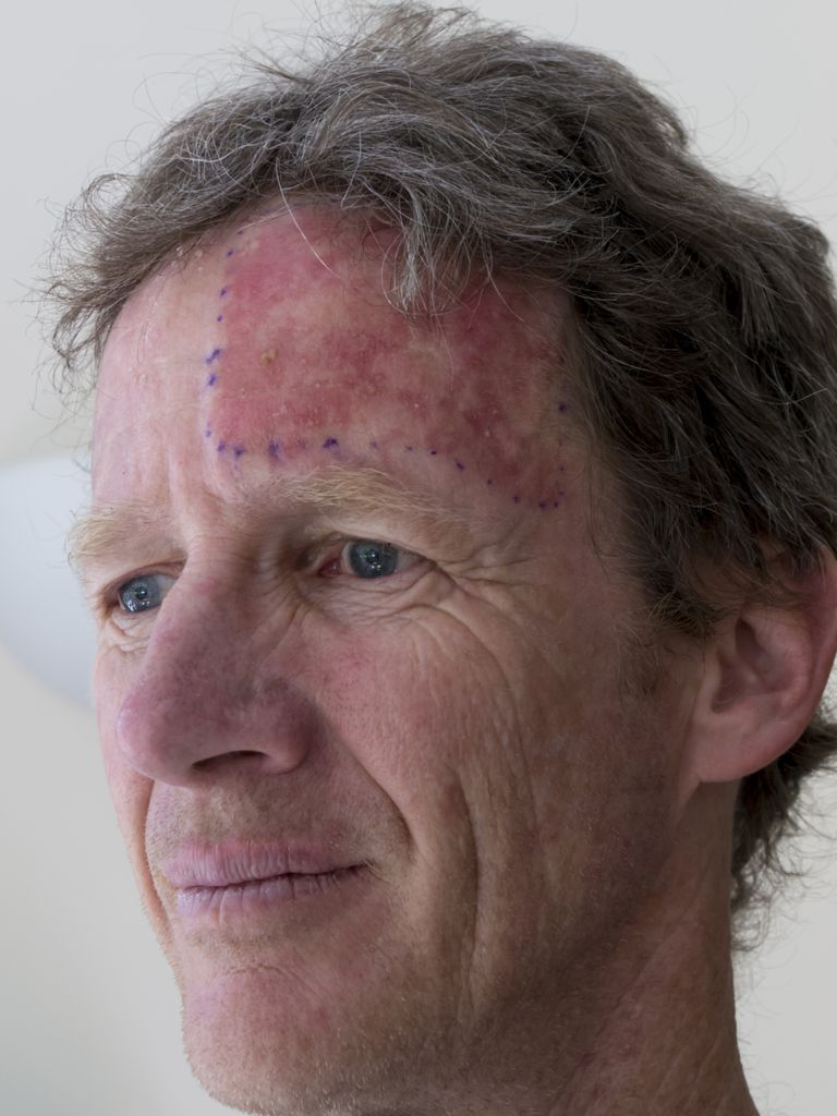man who has undergone photo dynamic therapy on face