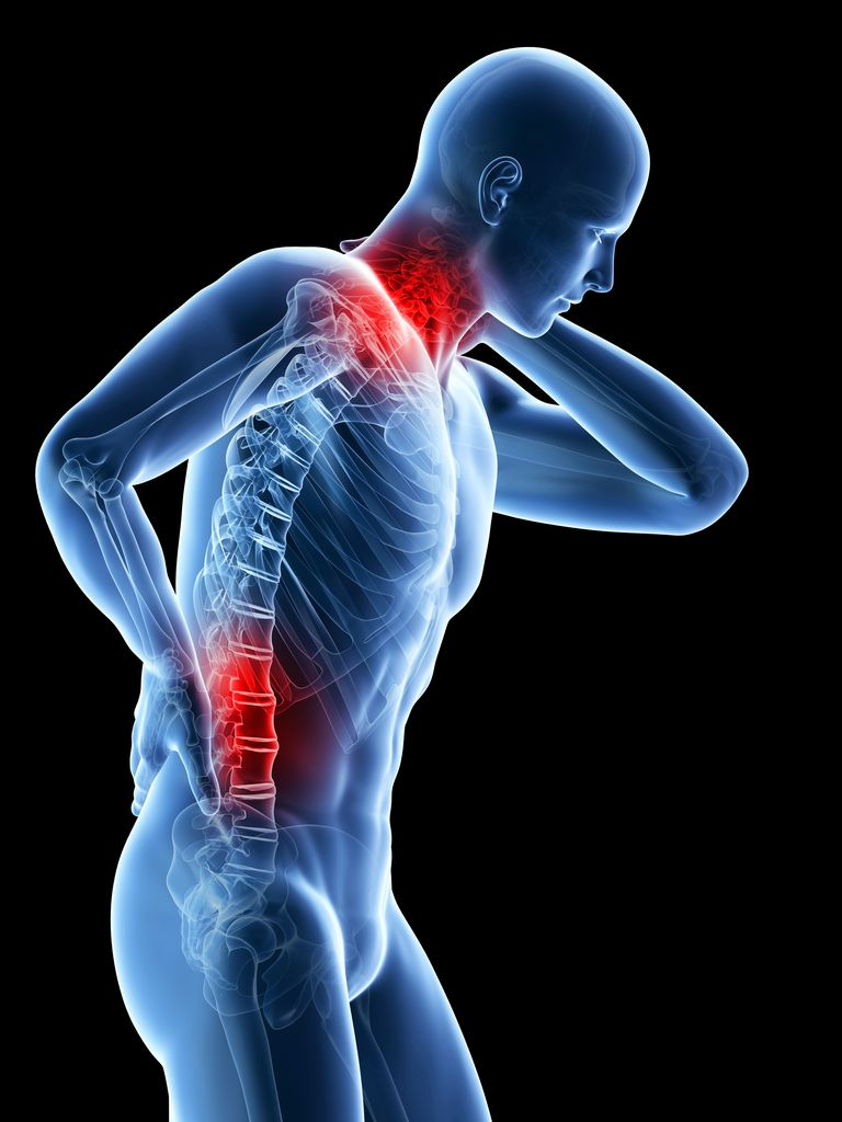 A flat low back can cause neck pain, too.