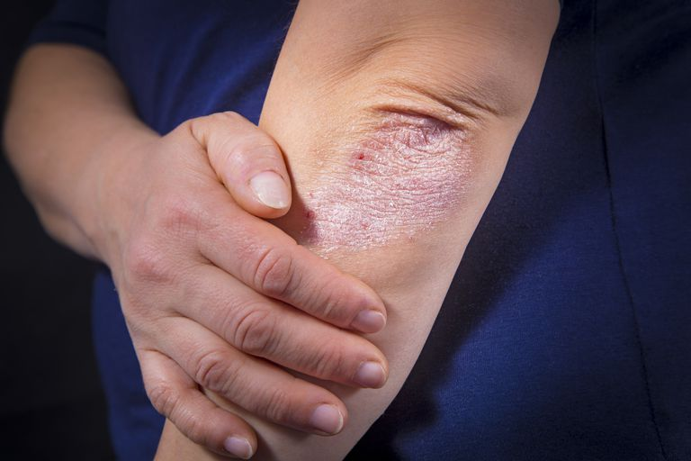 photo showing lichen simplex chronicus on a persons elbow