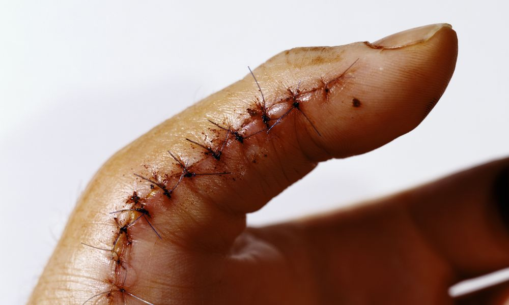 sutures on thumb
