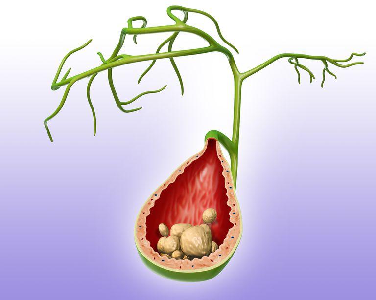 Illustration of a gallbladder with gallstones