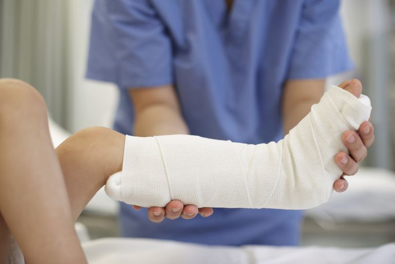 Medical professional holding child's leg in cast